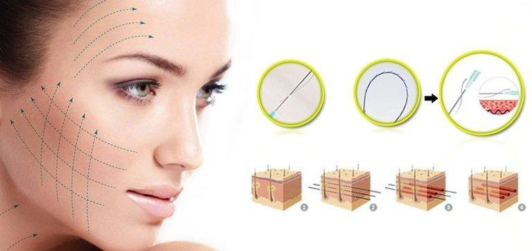 Cấy chỉ collagen có tốt không? - Cấy chỉ collagen không những cung cấp collagen và vitamin cho da mặt mà còn kích thích sản sinh collagen tự nhiên.