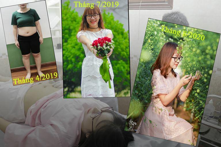 HÌnh ảnh bạn Nhung trước và sau khi giảm béo tại Đông Phương Y Pháp