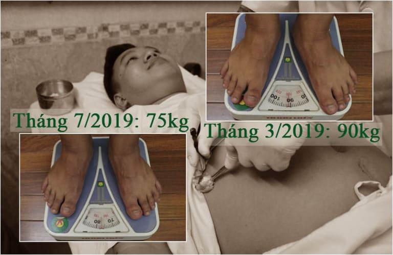 Thành Trung thành công loại bỏ 15kg mỡ thừa sau khi cấy chỉ giảm béo Đông phương Y pháp