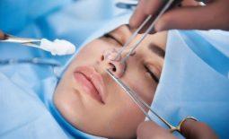 Cấy chỉ nâng mũi collagen - Ưu nhược điểm, giá thực hiện và cách chăm sóc đúng cách