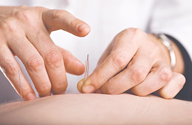 Nguyên lý điều trị bệnh xương khớp bằng phương pháp cấy chỉ dựa trên cơ sở châm cứu cổ truyền