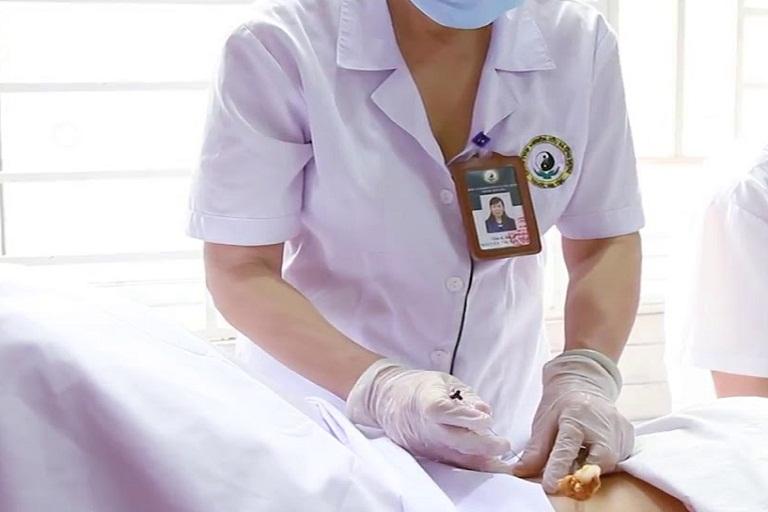 Phương pháp cấy chỉ chữa liệt dây thần kinh số 7 được chuyên gia đánh giá cao về tính hiệu quả và an toàn