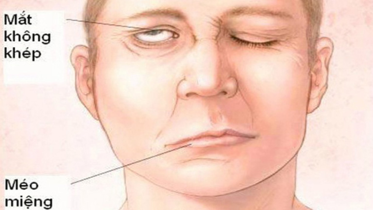 Người bệnh bị liệt dây thần kinh số 7 thường bị méo miệng, mắt không khép