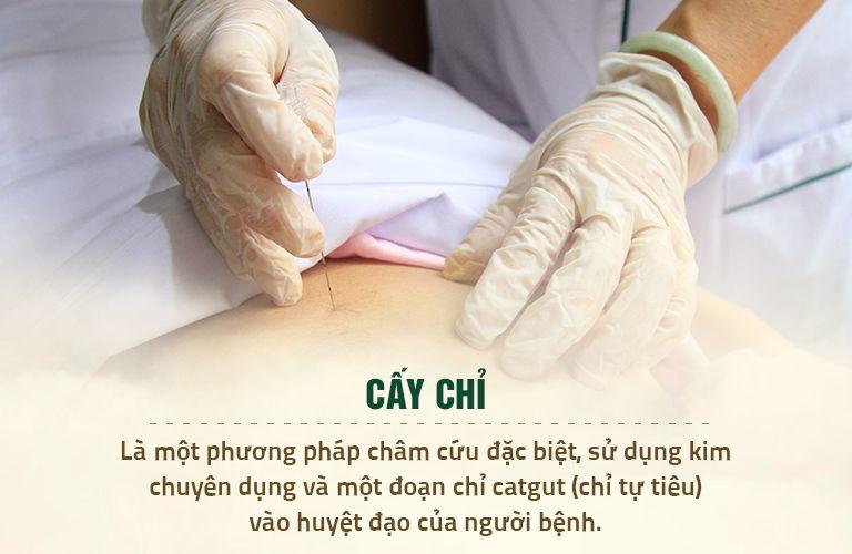 Cơ chế trị bệnh của phương pháp cấy chỉ