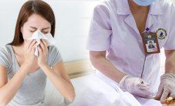 Cấy chỉ chữa viêm mũi dị ứng