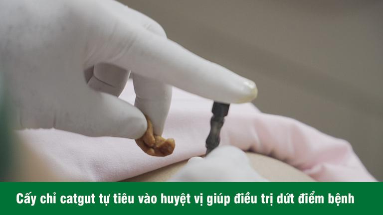 Cấy chỉ chữa viêm xoang sử dụng sợi chỉ tự tiêu catgut để tạo các phản ứng hóa sinh liên tục