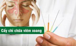 Cấy chỉ chữa bệnh viêm xoang: THÔNG xoang, HẾT nghẹt, KHÔNG xâm lấn, hiệu quả và an toàn