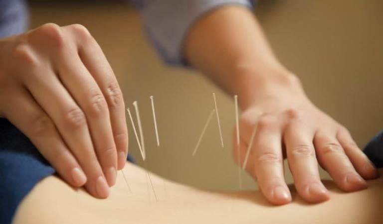 Phương pháp cấy chỉ chữa bệnh đau lưng được nhiều người biết đến, điều trị bệnh không xâm lấn, không phẫu thuật, không dùng thuốc tây