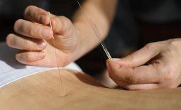 Cấy chỉ điều trị đau lưng có hiệu quả không? Cách thực hiện và chăm sóc