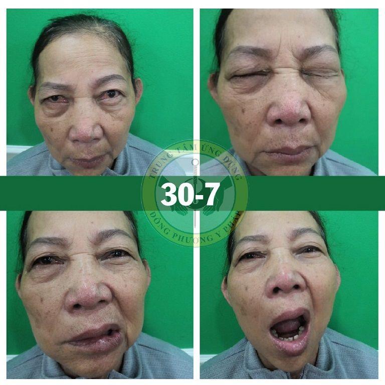 Cô Lá bắt đầu trị liệu cấy chỉ với những di chứng méo miệng, mắt không mở được
