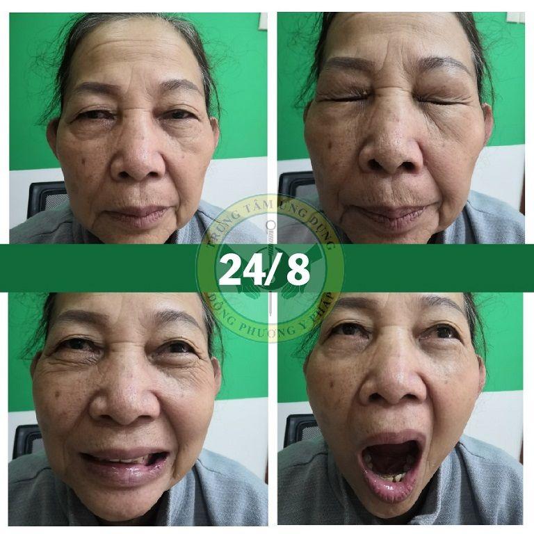 Cô Lá sau khi trị liệu cấy chỉ tại Trung tâm Đông phương Y pháp
