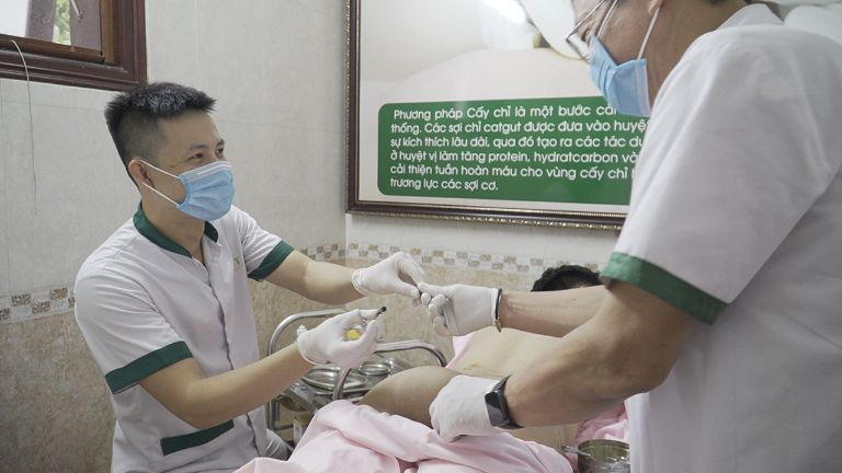 Thời gian thực hiện cấy chỉ chữa viêm mũi dị ứng tùy thuộc vào mức độ nghiêm trọng của mỗi người